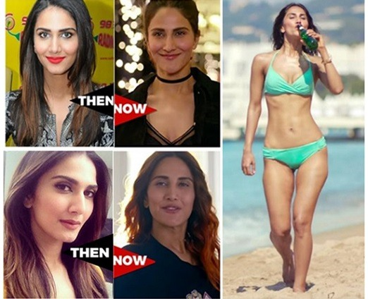 Bollywood actresses who have done plastic surgery